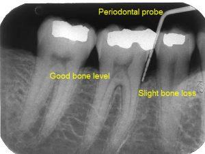 Periodontal Probe