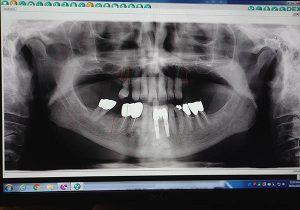 Oral Xrays